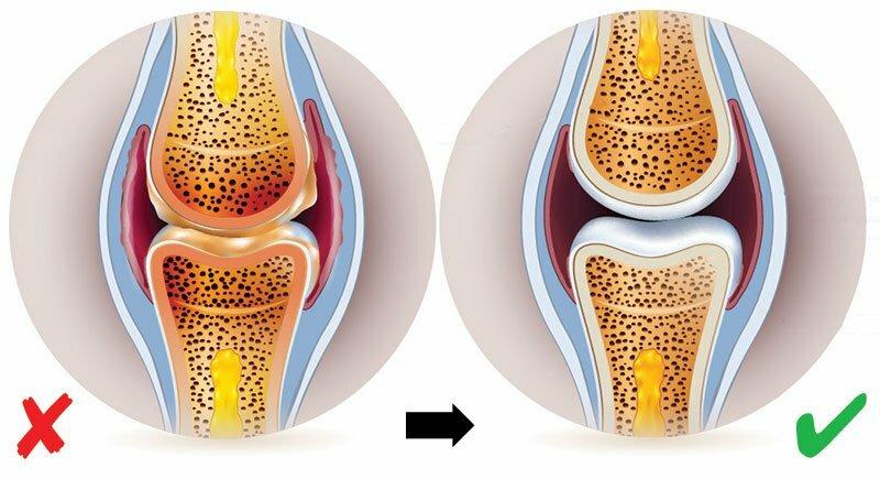ízületi fájdalom index)