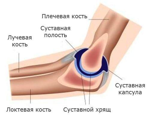 a könyök ízületének chondrocalcinosis kezelése)