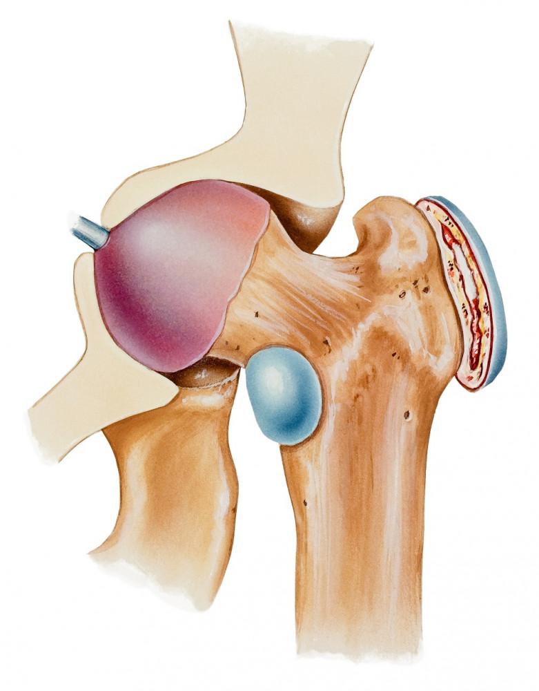 arthrosis kezelés olaszországban)