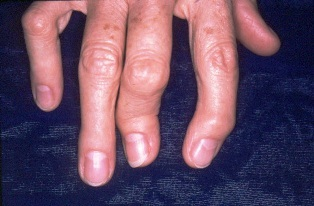az ízületi gyulladástól a pikkelysömör arthritisig)