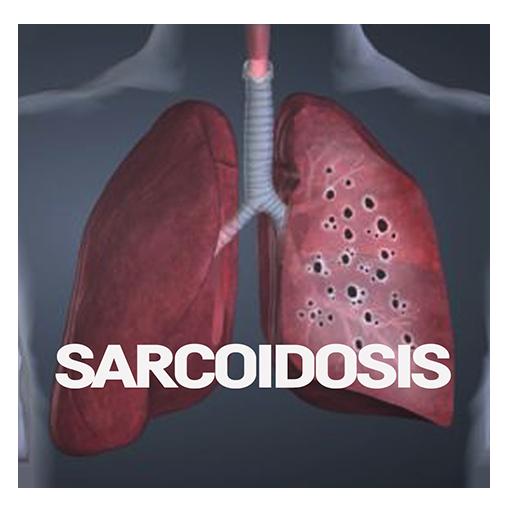 sarcoidosis ízületi fájdalom)