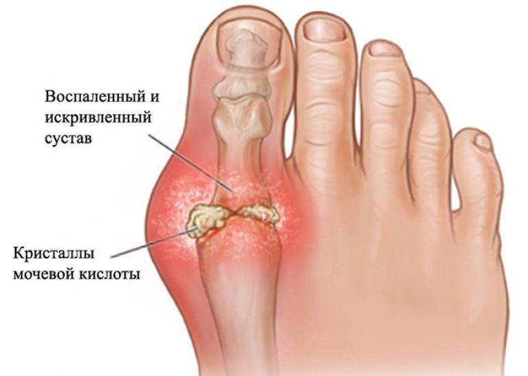boka deformáció reumatoid artritiszben