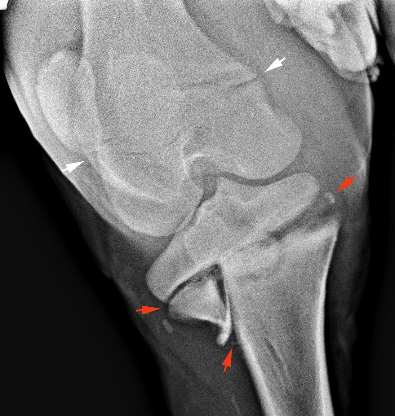 a térdízület meniszkuszos törése ízületi fájdalmak a csukló kezelésénél