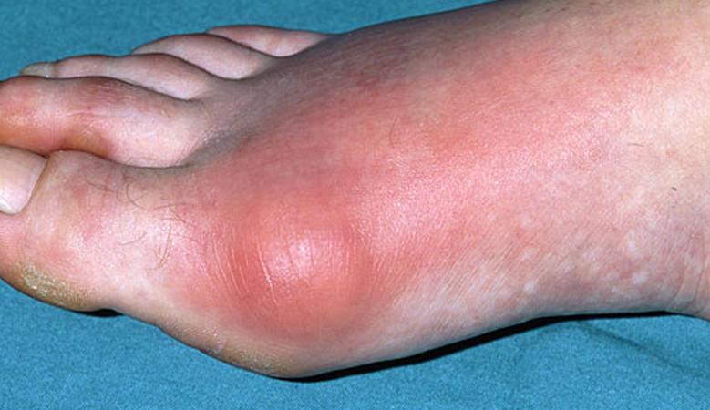 az ízület lába duzzadt és fáj