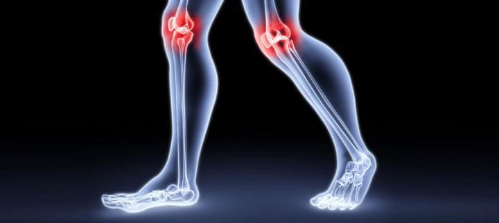 kenés a térd ízületeiben miért fáj a láb az ízületekben