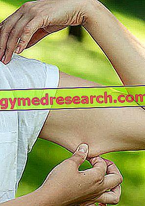 emberi kötőszöveti betegségek