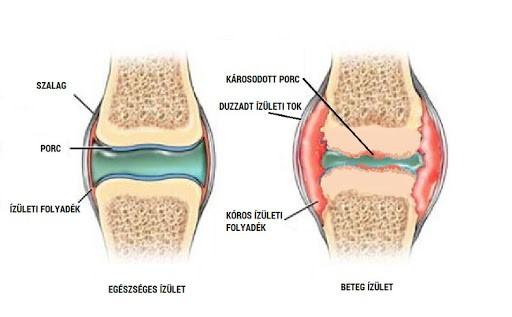 artrózis folyadék a térdízületben)