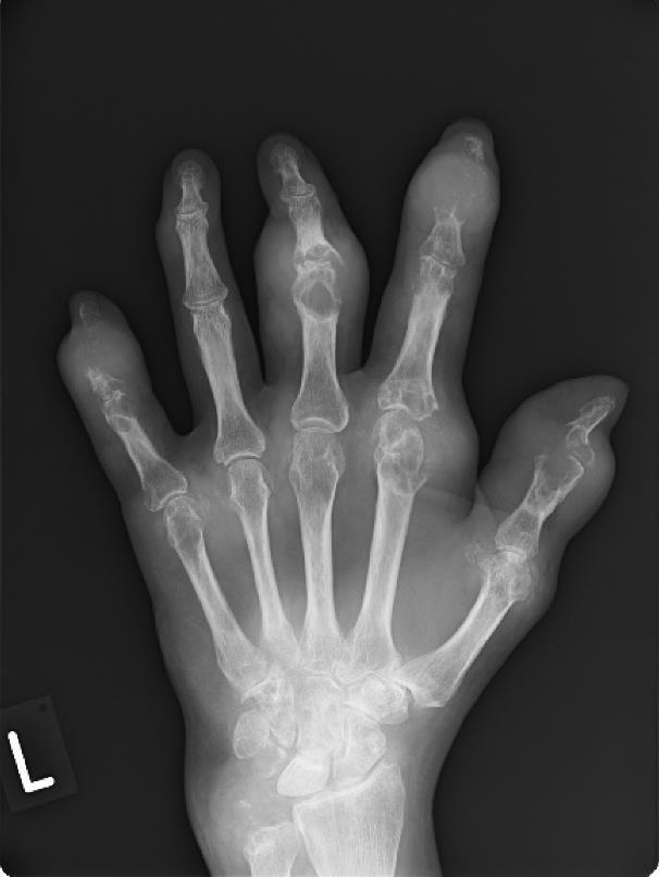kézízületi fájdalmak áttekintése