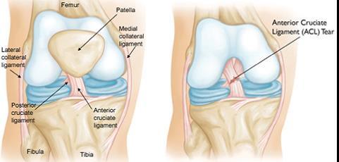 1. szakasz a térd artrózisa