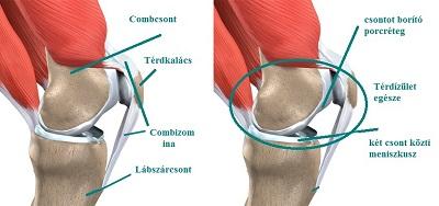 zsibbadás a karok és a lábak ízületeiben ízületi fájdalom gyermekeknél egy év után