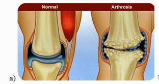 artrózis kezelése csontritkulás esetén)