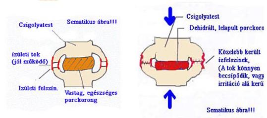 gerincvelő artrózis c6 kezelés