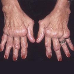 a prednison ízületi gyulladást kezelik)