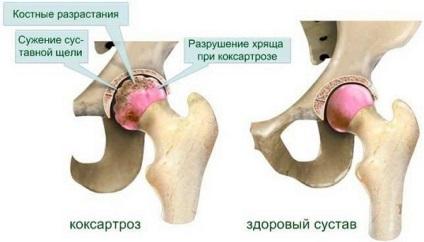 térd coxarthrosis 2 fokos kezelés)