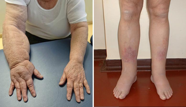 ödéma kezelése boka artrózissal