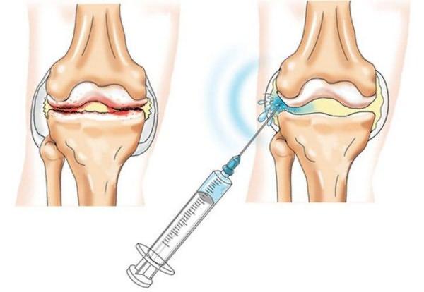 chondroprotektorok ízületi kezelési tablettákhoz