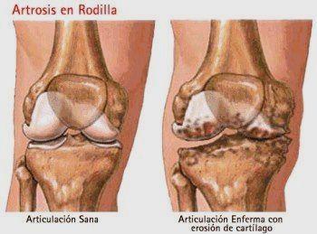 térdízület rheumatoid arthritis)