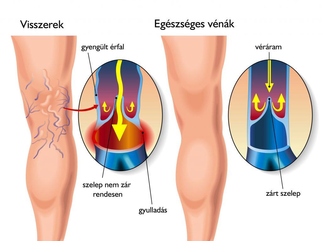 ha a csípőízület ízületi gyulladása van