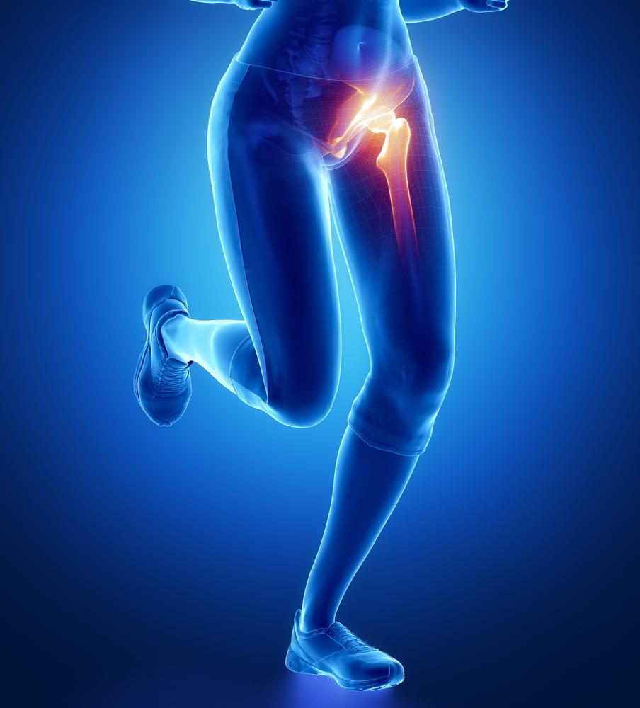 csípőízületi fájdalom kicserélése után az ágyékban