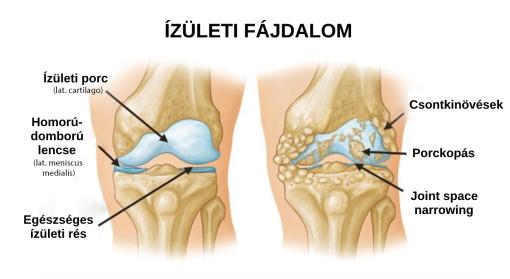 bokaízület duzzanata belülről az alsó láb artrózisa kezelés