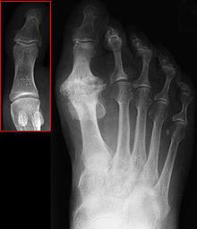 left first mtp osteoarthritis icd 10