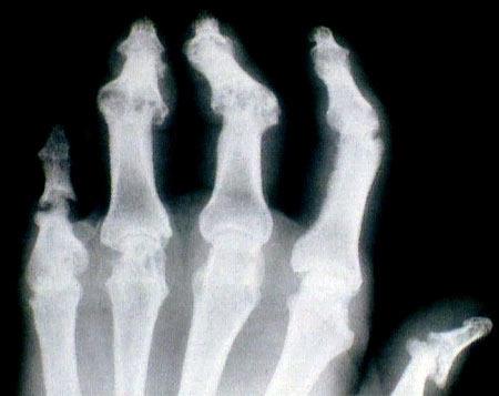 rheumatoid arthritis kötőszöveti betegség d-vitamin ízületi fájdalmak kezelésére
