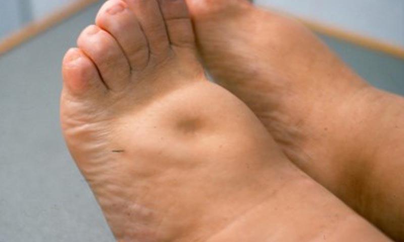 bokaödéma okozza a kezelést