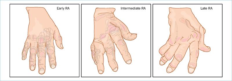 rheumatoid arthritis stages)