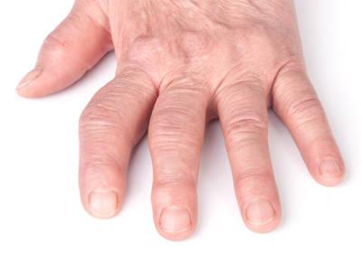 a kéz artrózisa és kezelő kenőcs