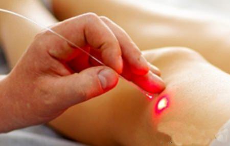 fizioterápiás módszerek a deformáló ízületi gyulladás kezelésére