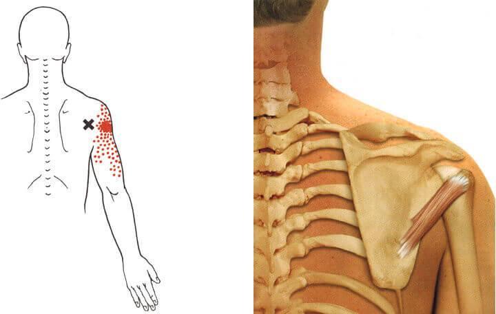 izomfájdalom az egész testben