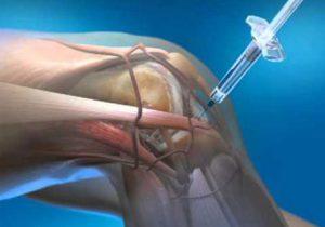 arthrosis arthrosis kezelése)