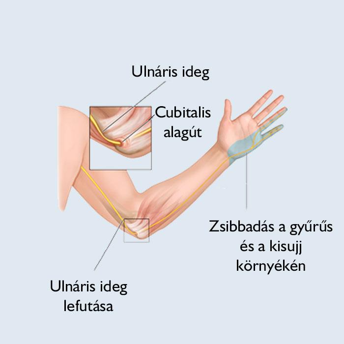 zsibbadt ujjak és fájó ízületek)