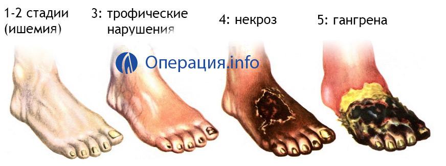 a bokaízület ragasztásainak 2 fokos károsodása)