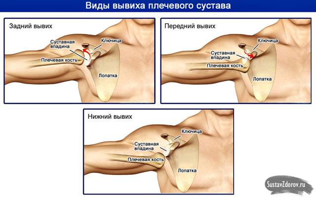 a vállízület kapszula sérülésének kezelése)