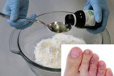 ricinusolaj ízületi kezelés
