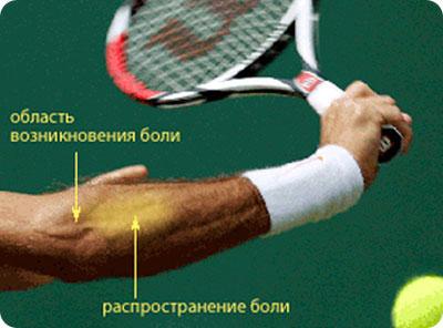 a vállízület injekciójának kezelése)