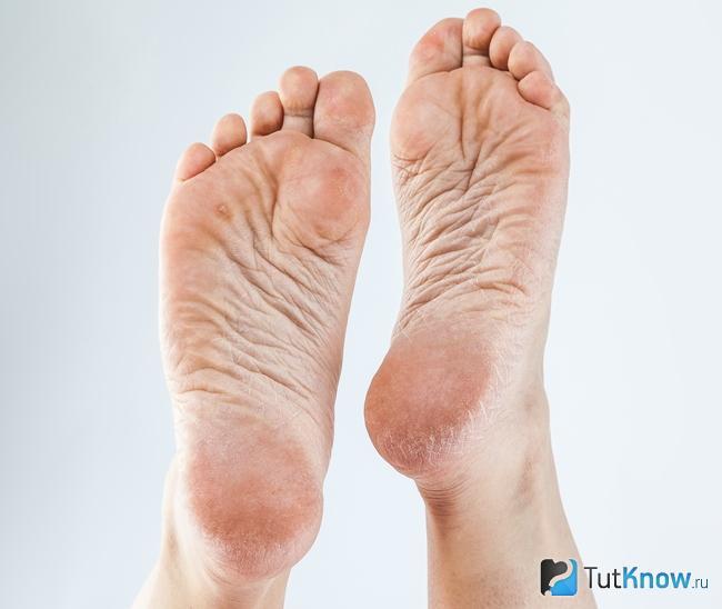 rheumatoid arthritis lábujja