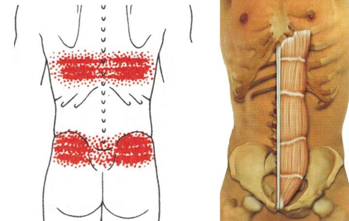 A fájdalom minden okait egyidejűleg megtudjuk a nyakban és a vállakban. - Kyphosis -