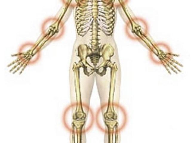 ízületi fájdalomcsillapító injekciókban git artrosis kezelése