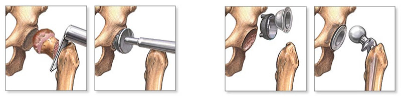 deformáló artrosis a csípő kórtörténetében)