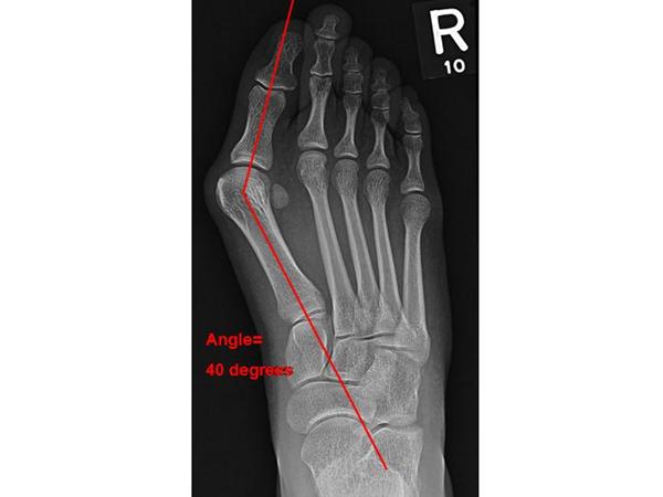 Dr. Diag - Rubeola arthritis