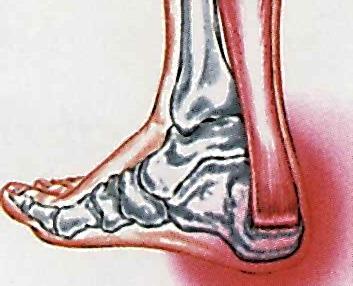 krónikus boka sérülés