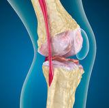 milyen vizsga a csípőízület fájdalmáról)
