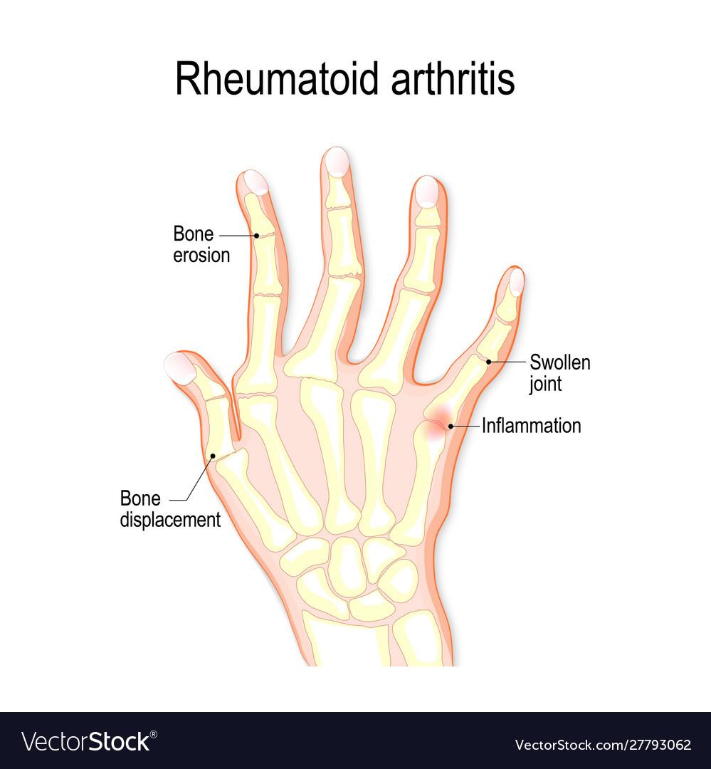 rheumatoid arthritis bursitis a könyökízületben hogyan lehet kezelni a boka részleges ragasztását