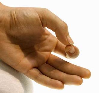 a hüvelykujj fáj és viszket