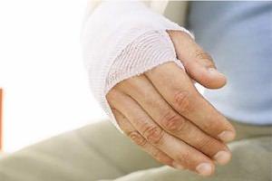 ujjatörések a csukló törése után