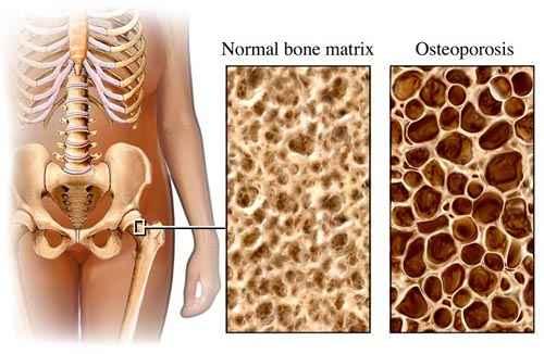 érrendszeri készítmények az ágyéki csontritkulásról