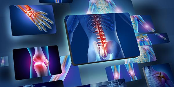 artrózis lefolyása