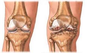 tű-artrózis kezelés)